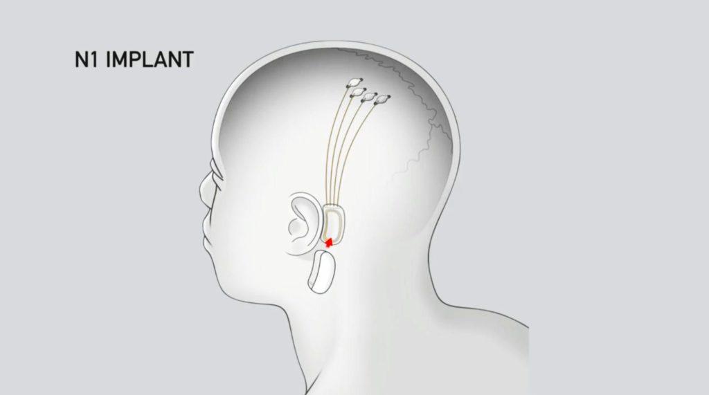 Neurolink render on the human head
